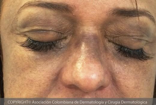 Dermatitis-cenicienta