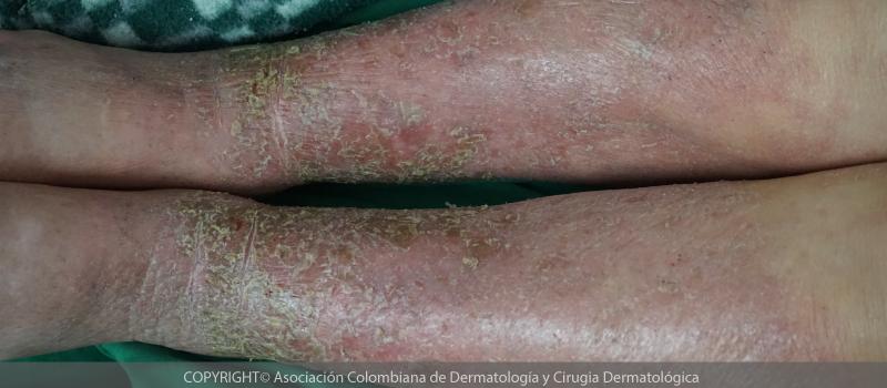 Dermatitis-de-contacto-alérgica