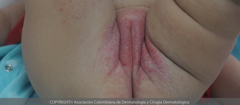 Dermatitis-del-panal