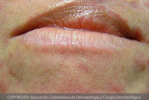 Dermatitis-periorificial
