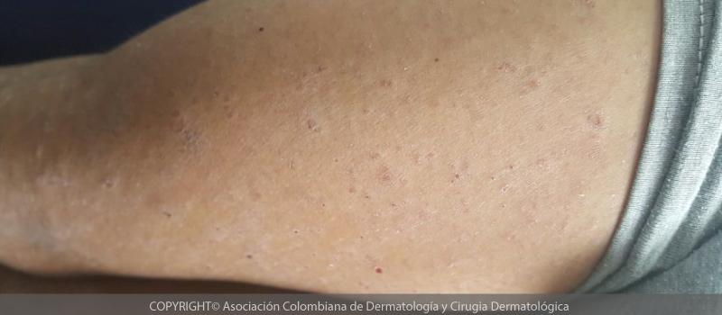 dermatitis-atópica9