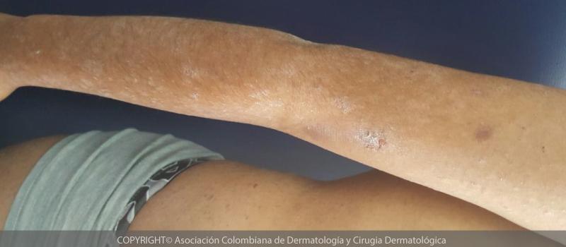 dermatitis-atopica1