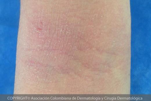 dermatitis-atopica4