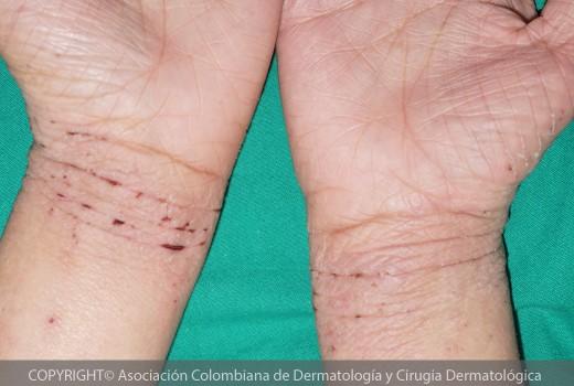 dermatitis-atopica6