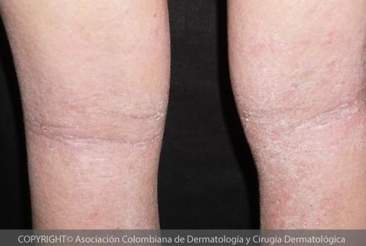 dermatitis-atopica7