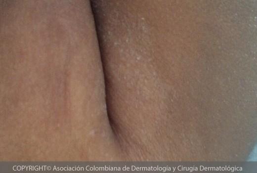dermatitis-atopica8